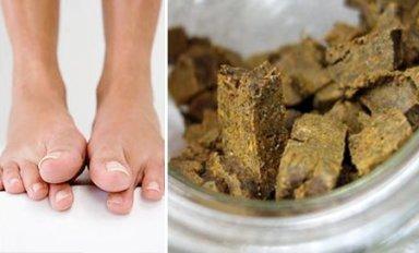 Как прополисом лечить грибок ногтей